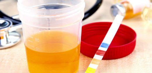 Появление белка в моче при беременности